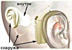 Кохлеарный имплант представляет собой сложную техническую систему